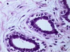 Normal Breast with empty ducts (purple circles/ellipses), by Itayba at Wikimedia