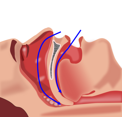 Collapse of Pharynx during sleep can cause apnea, by Habib M'henni & User:DMY on Wikimedia