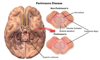 The Red Nucleus in Parkinson's Disease, created by BruceBlaus at Wikimedia
