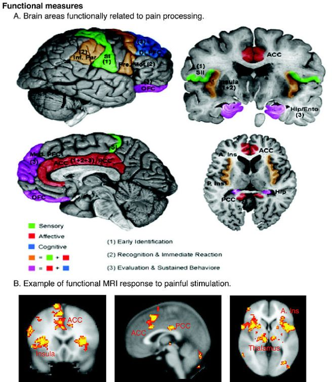 Cortical areas involved with pain, from Borsook et al. 2007, at Wikimedia. See Dunckley et al (2007) for brainstem pain processing regions.