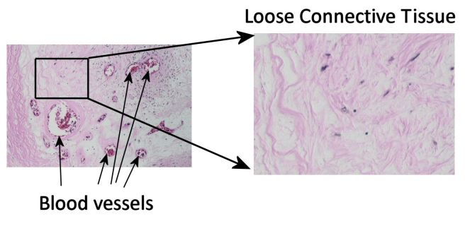 Loose connective tissue surrounding blood vessels, modified from image of occluded artery by Patho at Wikimedia. This image is not necessarily what happens with exposure to excess lithium.