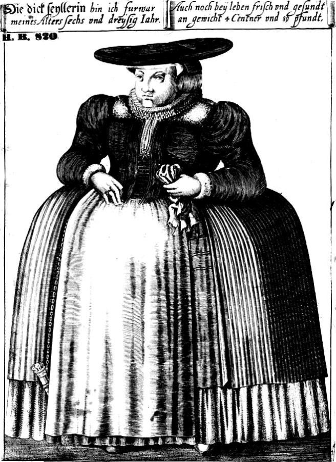 Obese Woman (1612), page 377 from Michael Stolberg: 'Abhorreas pinguedinem': Fat and obesity in early modern medicine (c. 1500–1750). In: Studies in History and Philosophy of Biological and Biomedical Sciences 43 (2012), pages 370–378. Taken from PD at Wikimedia