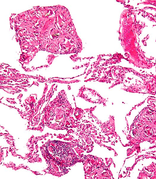 Encapsulation (granuloma) of talc particles in lung by Nephron at Wikimedia (Copyright © 2009 Nephron)