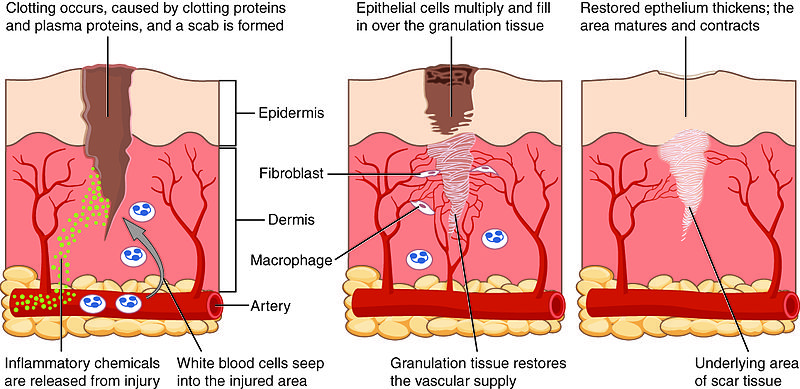 Tissue Repair | Mind-Body Medicine in Research and Practice
